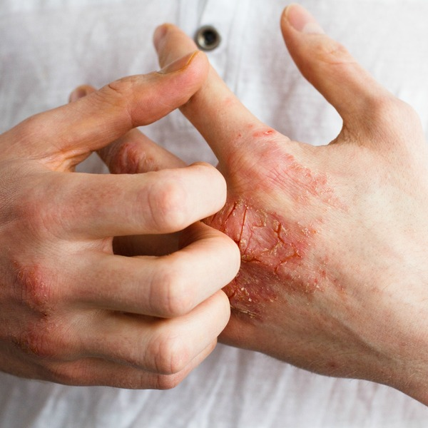 STRUGGLING WITH ECZEMA ?